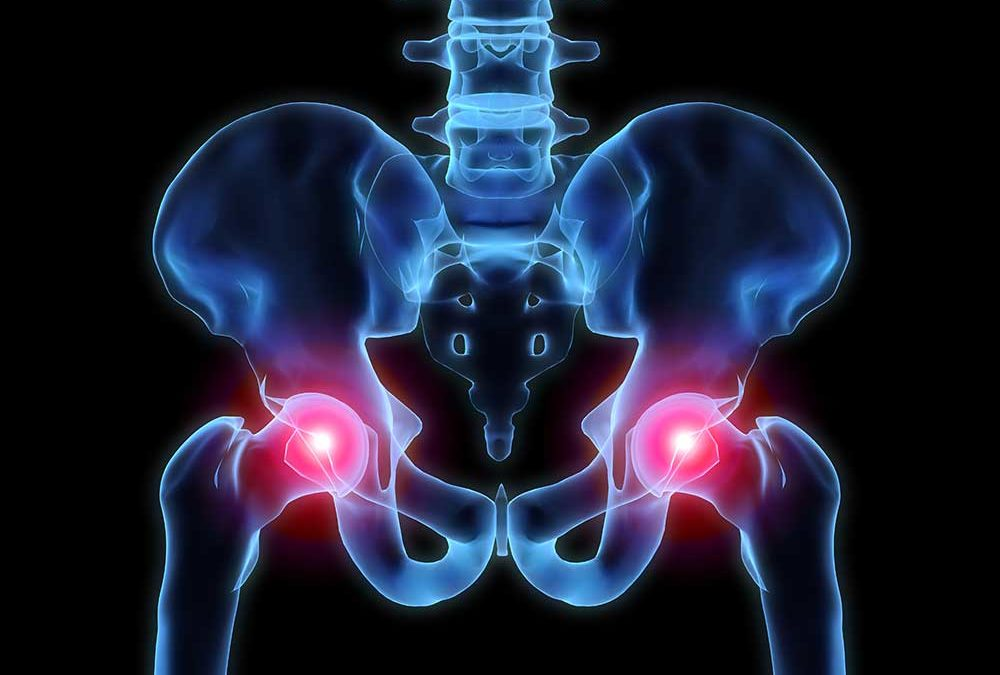 Causes of Hip Pain (and What to Do About It)