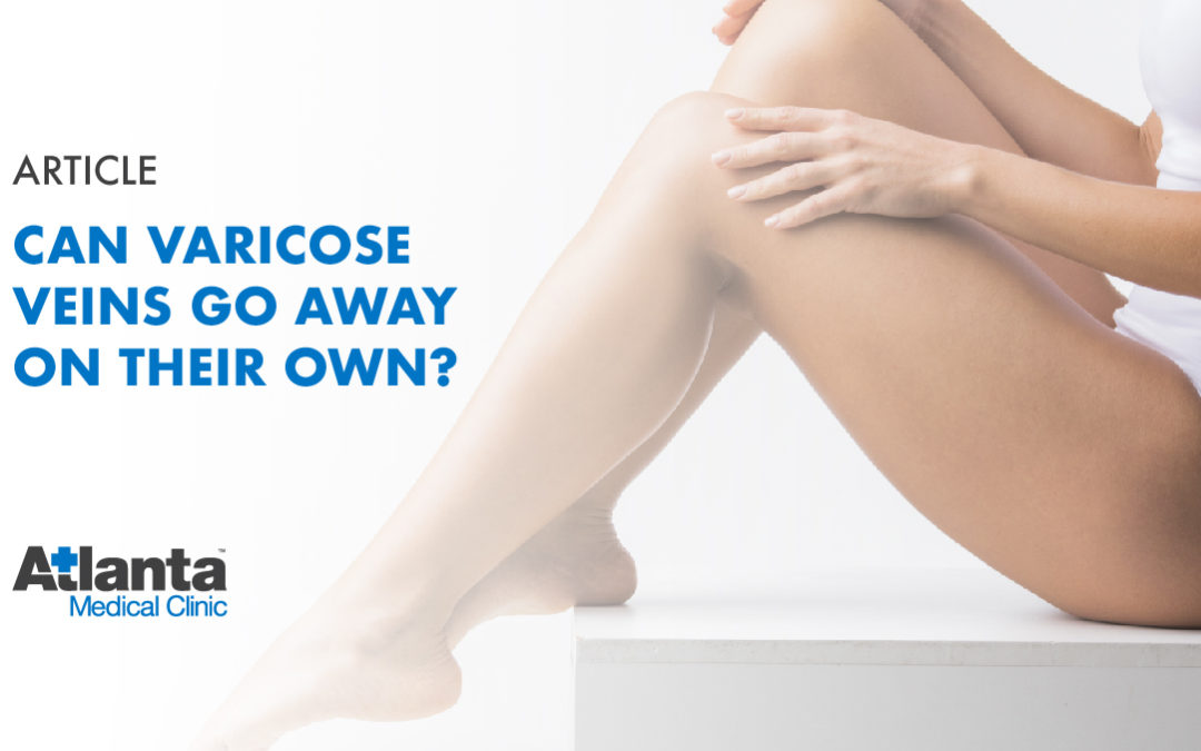 Can Varicose Veins Go Away on Their Own?