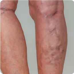 vein treatments in atlanta