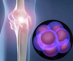 stem cell osteoarthritis